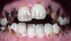 Crystal Meth – Modedroge mit verheerenden oralen Folgen