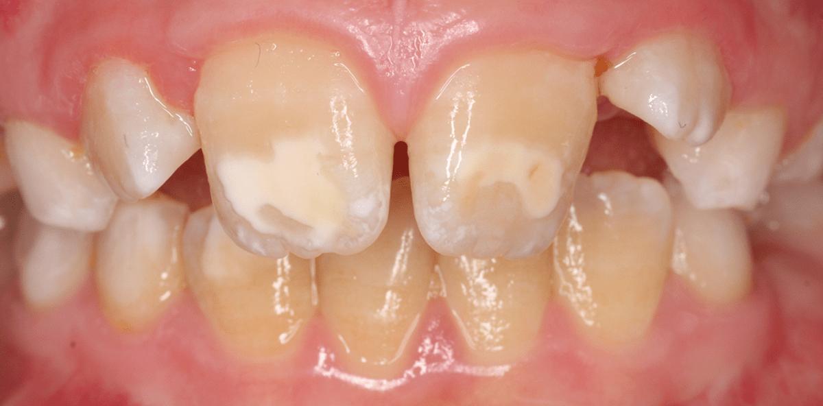 Kind Gelbe Zähne