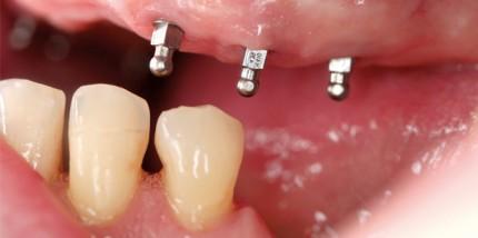 Verankerung einer Totalprothese mit Mini-Implantaten