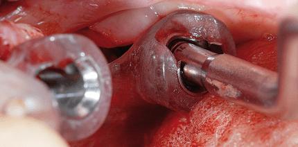 Konfektionierte Verbindungselemente zur Verankerung von Zahnprothesen auf Implantaten