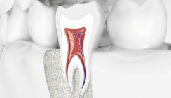 Nanodiamanten verhindern Zahnverlust nach Wurzelbehandlung