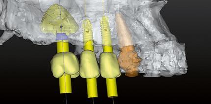 Die Integration der navigierten Chirurgie in der Praxis