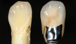 Implantatgetragene NEM-Einzelkrone – Natur trifft Restauration