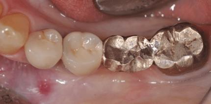 Socket Preservation 3.0: Sofortimplantation mit Keramikimplantaten