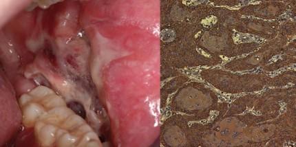 Oraler Lichen planus (OLP) und orale lichenoide Reaktion (OLR)
