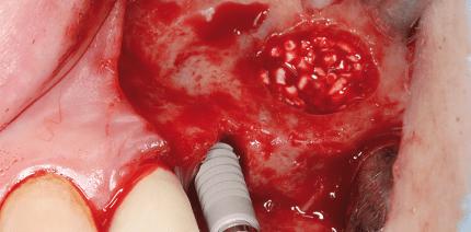 Neuartiges Augmentationsmaterial und Membran für Sinuslift