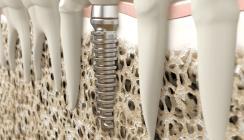 So wird die Osseointegration von Implantaten beschleunigt