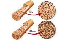 Osteoporose und Zahnersatz: Was Patienten beachten sollten