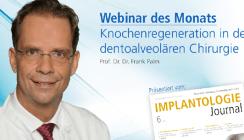 Heute: Kostenloses Live-Webinar zur Thematik Knochenregeneration