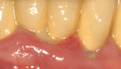 Aktuelle Behandlungsmethoden in der Parodontologie – Teil I