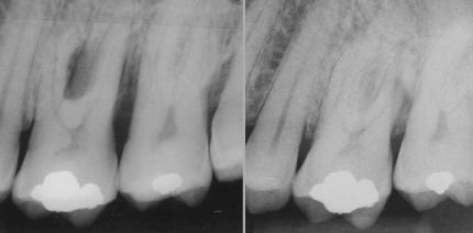 Parodontalbehandlung oder lieber Implantate?