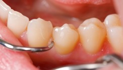 Therapie der parodontalen Entzündung und des Bone Remodeling – Therapeutisches Vorgehen