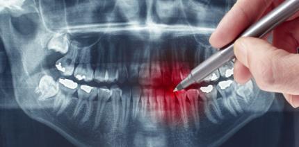 Parodontitis: die unbekannte Krankheit