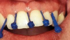 Parodontale Diagnostik und Therapie – ein Überblick