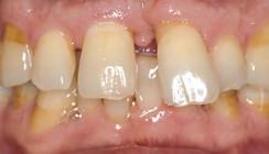 Rehabilitation der Funktion und Ästhetik bei Patienten mit parodontal geschädigten Zähnen