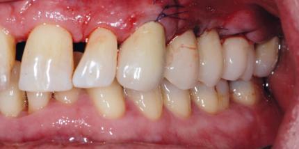 Aktuelle Behandlungsmethoden in der Parodontologie – Teil II
