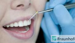 Parodontitis-Erreger schnell erkennen