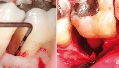 Evidenz der regenerativen parodontalchirurgischen Therapie