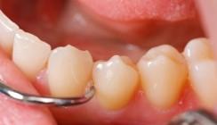 Parodontitis in aller Munde?