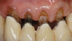 Auch das Parodontium altert!