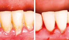 Parodontitis – Neue Wege der Prophylaxe