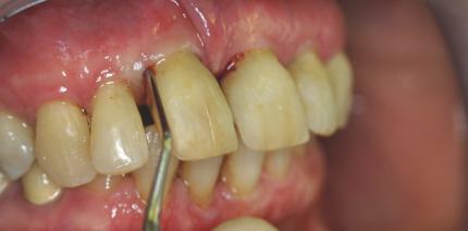 Die unterstützende Parodontaltherapie – eine Lebensaufgabe