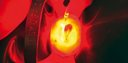 Photodynamische Therapie in der Endodontie