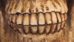 Plaque enthält mehr DNA als Zähne oder Knochen
