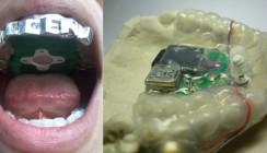 Mit den Zähnen Musik hören – der etwas andere MP3-Player