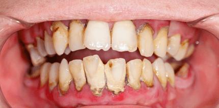 Professionelle Zahnreinigung für 8,50 Euro?