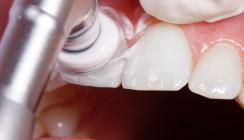 Professionelle Zahnreinigung mit allen Mitteln?