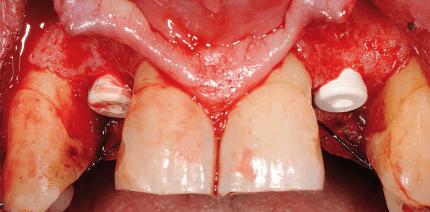 Reversibel verschraubtes Keramikimplantat im Frontzahnbereich