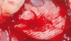 Verhalten einer Ribose-kreuzvernetzten Membran bei früher Exposition