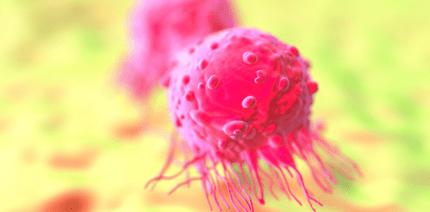 Parodontitispatienten haben erhöhtes Brustkrebsrisiko