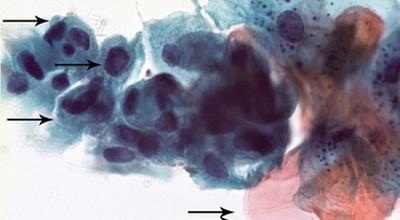 Risikoläsionen der Mundhöhlenschleimhaut