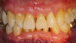 Patientenverständliches parodontales Risikomanagement