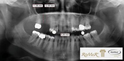 Innovation für die klassische Röntgendiagnostik