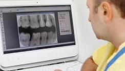 Erforderliche Röntgenaufnahmen bei Wurzelfüllungen