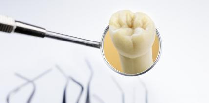 Zähne mit Säureschäden schonend und effizient behandeln