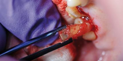 Knochen- und Gewebeschonung bei der Zahnextraktion