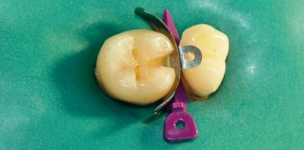 Althergebrachtes und Innovationen in der Zahnheilkunde
