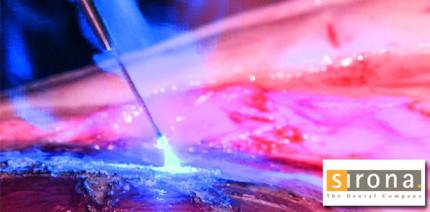 DGL-Tagung: SIROLaser Blue überzeugt Anwender und Kongressteilnehmer
