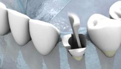 Neue Strategien zum Kieferkammerhalt: Socket Preservation 2.0