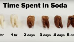 Kohlensäure zersetzt Zahn: So gefährlich können Softdrinks sein