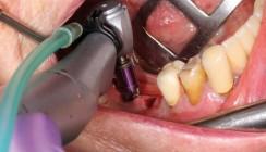 Sofortimplantation nach Implantatbruch im Unterkiefer