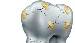 Saft- und Sodatrinker haben ein erhöhtes Risiko für Zahnerosionen