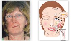 Erkrankungen der Speicheldrüsen – Teil 3