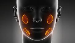 Speichelsteine: Trend zu minimalinvasiver Behandlungsmethode