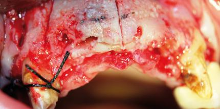 Bone Splitting und Spreading als minimalinvasives Verfahren