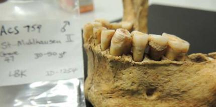 Zahnstein gewährt Einblick in die Evolutionsgeschichte